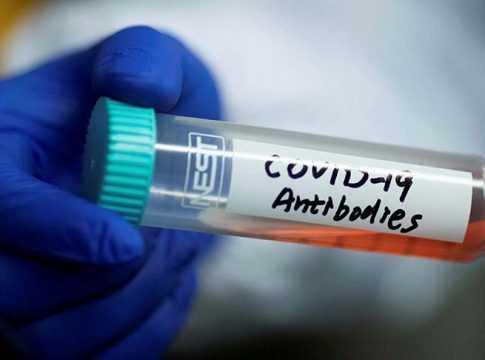 COVID-19 Antibodies