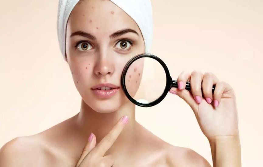 Causes of Dark Spots and Pigmentation on Face